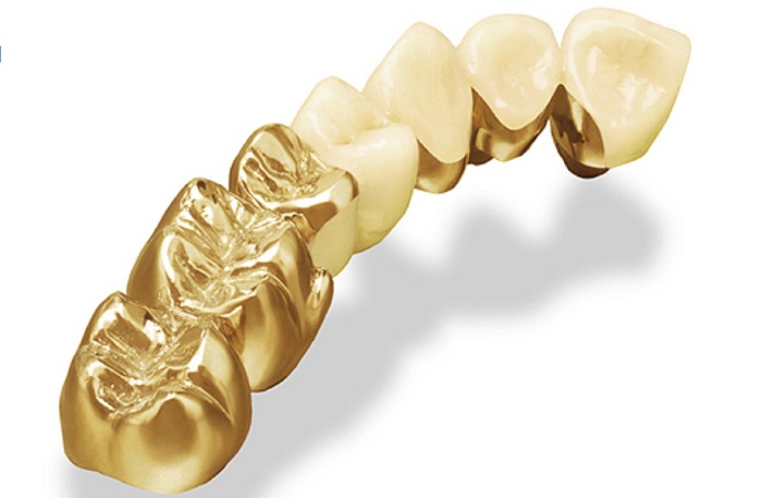 Làm răng mạ vàng - Giải pháp phục hình t hiệu quả, an toàn và chất lượng cao 3