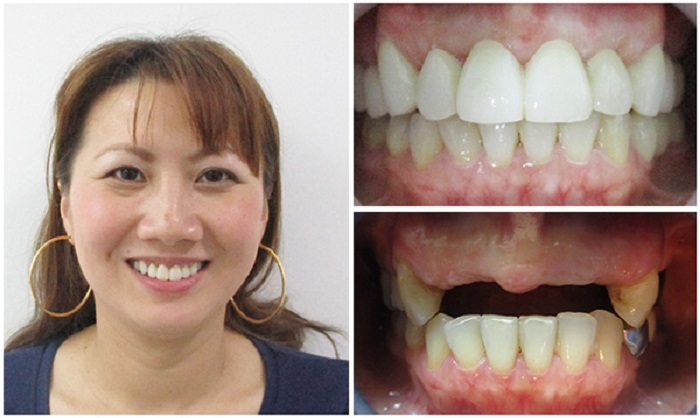 Trồng răng implant ở đâu tốt nhất -15