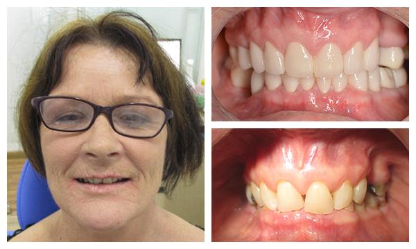 Địa chỉ trồng răng implant nào uy tín nhất -20