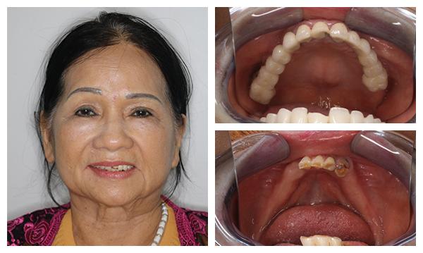 Tiến hành trồng răng implant nguyên hàm