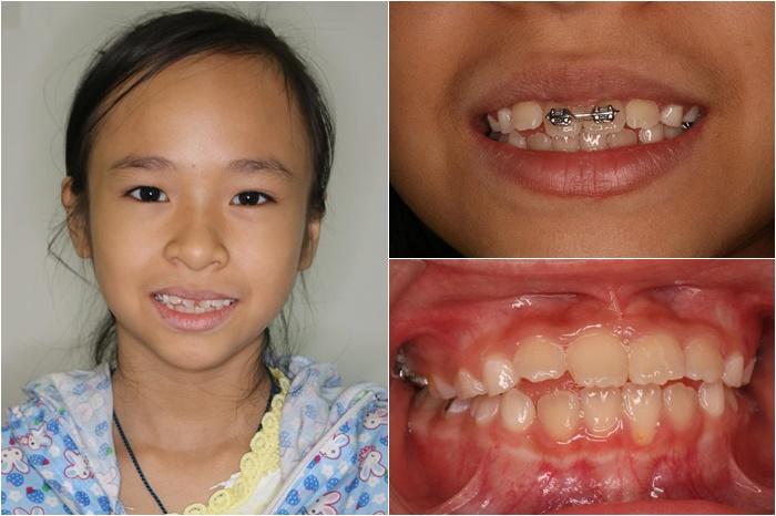 làm răng cho bé - 3