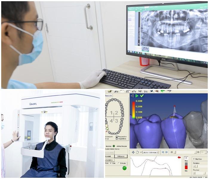 Làm răng sứ thẩm mỹ - Giải pháp phục hình hoàn hảo cho răng 6