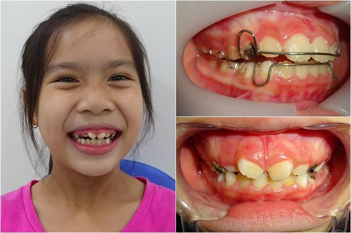 Niềng răng ốc nong rộng - Giải pháp cho hàm răng đều đẹp, không còn hô, móm 4