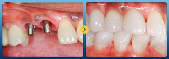 Trồng răng cố định implant