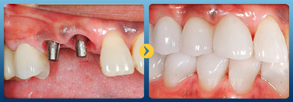 Trồng răng giả vĩnh viễn -5