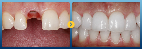 Trồng răng giả vĩnh viễn -19