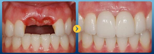 Trồng răng giả vĩnh viễn -18
