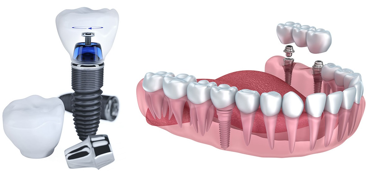 Cấu tạo răng implant, bắc cầu răng sứ - Nha Khoa KIM