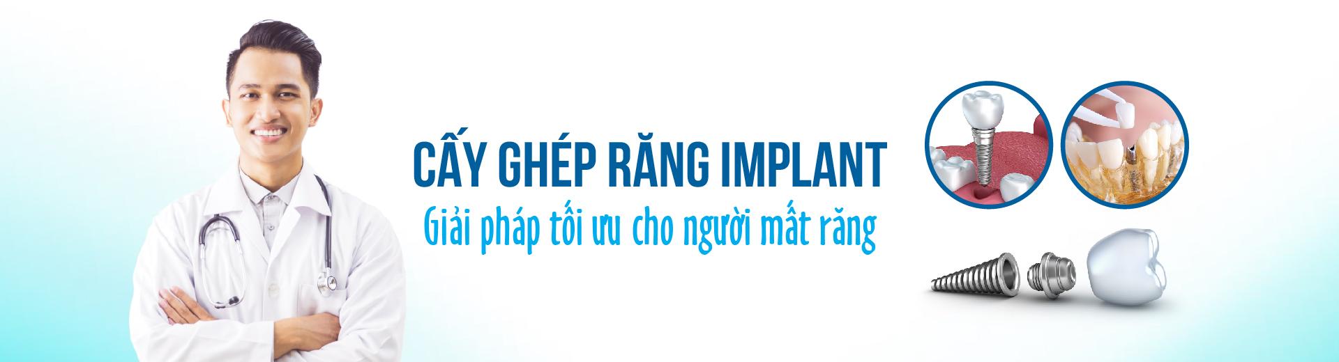Trồng răng implant tại Nha khoa Kim
