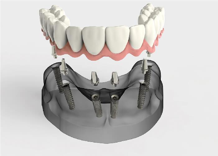 implant toàn hàm Nha Khoa Kim