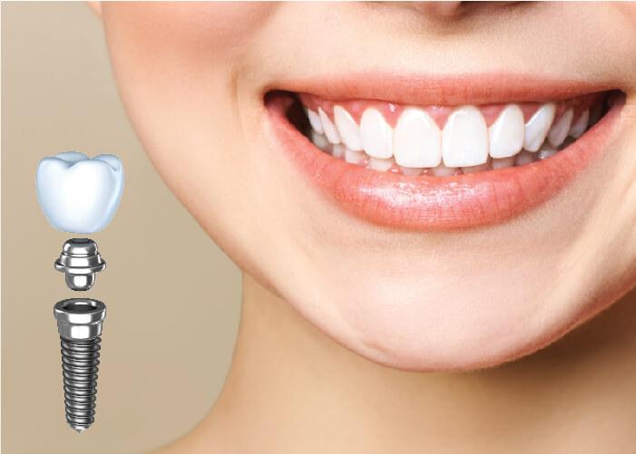 Cấy ghép implant là phương pháp phục hồi răng bị mất hiệu quả