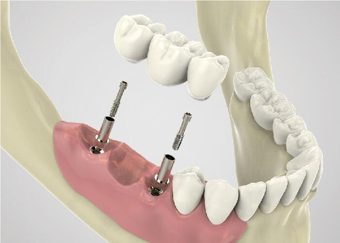 cầu răng sứ trên implant