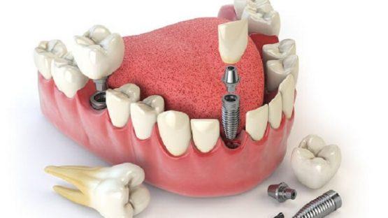 Ưu đãi lớn khi trồng răng implant tháng ba