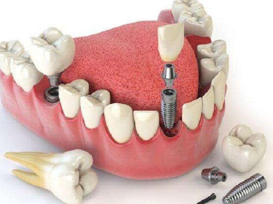 Cấy răng giả implant