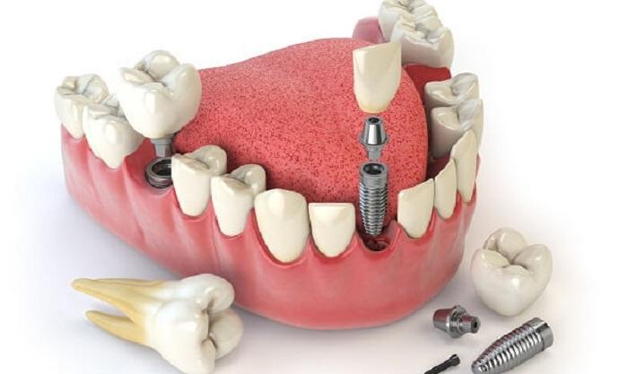 Giá trồng răng implant bao nhiêu tiền là giá chuẩn, đảm bảo hiệu quả? 1