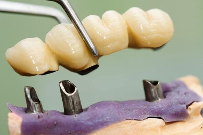 Giá trồng răng Implant bao nhiêu tiền tại Nha khoa KIM? 2