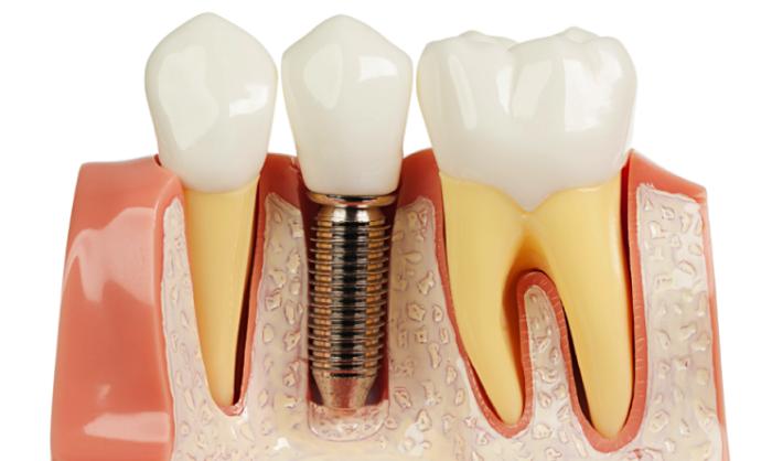 Kết quả hình ảnh cho xem xét một loạt các sản phẩm trong răng implant