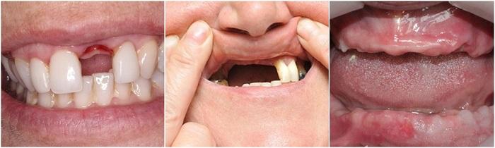 trồng răng implant 1