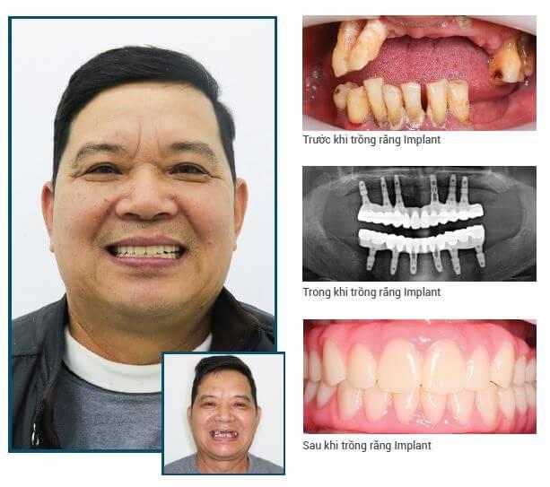 khách hàng cấy ghép implant toàn hàm Nha Khoa Kim