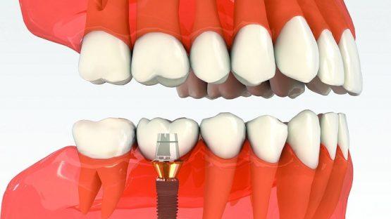 Làm răng implant – Giải pháp phục hình mất răng hoàn chỉnh nhất!
