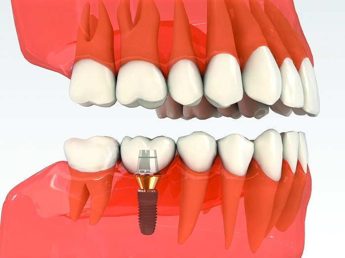 [Image: trong-rang-implant-3.jpg]