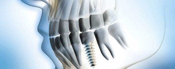 Làm răng mới an toàn và thẩm mỹ cao bằng cấy ghép răng implant 1