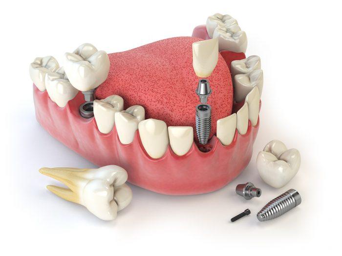 Trồng răng Implant Fast 3D - Phương pháp phục hình răng tân tiến từ Mỹ 1