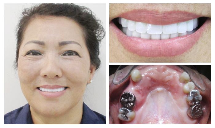 Làm răng sứ thẩm mỹ - Giải pháp phục hình hoàn hảo cho răng 13