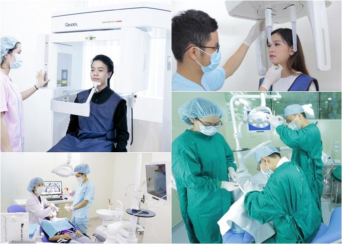 Nhổ răng hàm bằng kỹ thuật gây tê hiện đại không đau 4