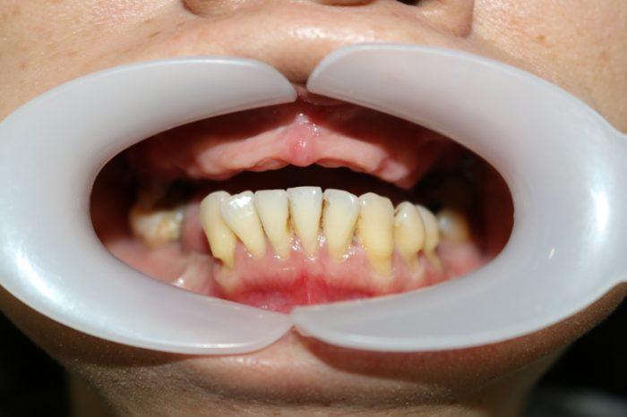 Trồng răng toàn hàm bằng kỹ thuật implant All On 4, all on 6 2