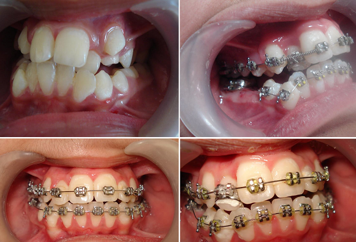 răng bị lòi sỉ 1