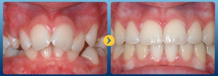 răng bị lòi sỉ 8
