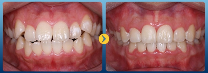 răng bị lòi sỉ 9