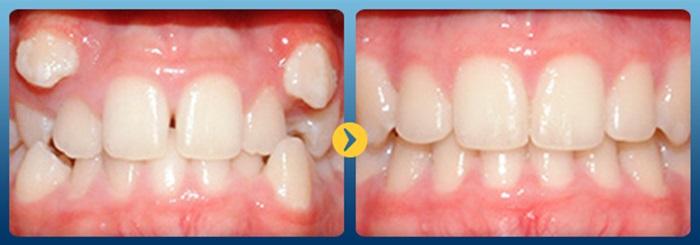 răng bị lòi sỉ 10