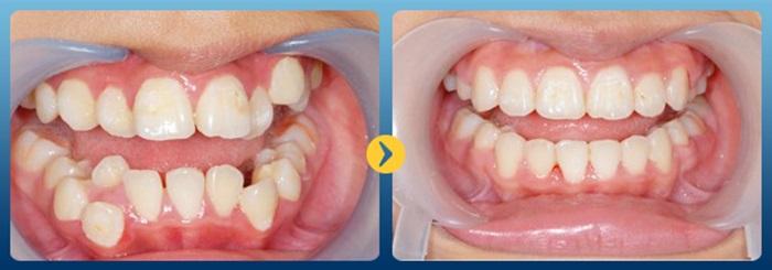 giá niềng răng hô nhẹ - 1