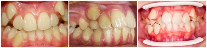 Răng bị lòi sỉ là gì? Điều trị bằng cách nào hiệu quả nhất? 1