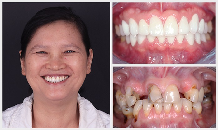 Làm răng sứ thẩm mỹ - Giải pháp phục hình hoàn hảo cho răng 11