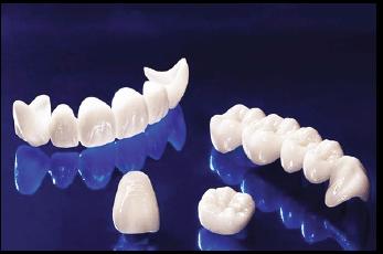 răng toàn sứ Nha Khoa Kim