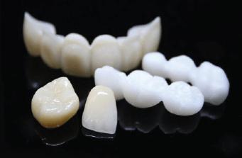 răng sứ toàn sứ Nha Khoa Kim