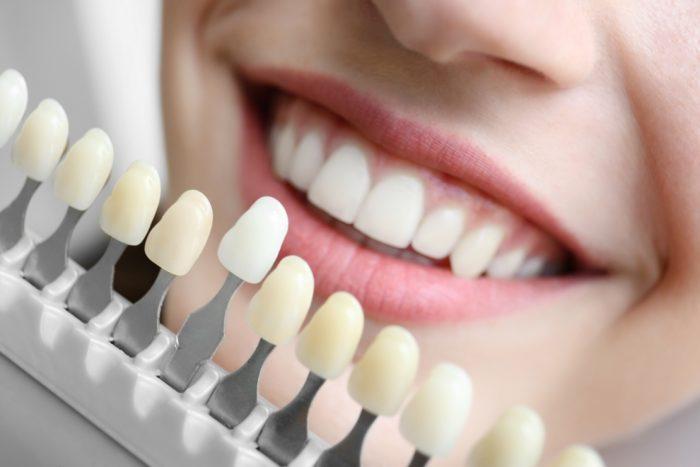 Bọc răng sứ cho răng hô giá bao nhiêu tiền? Chi phí tính thế nào? 1