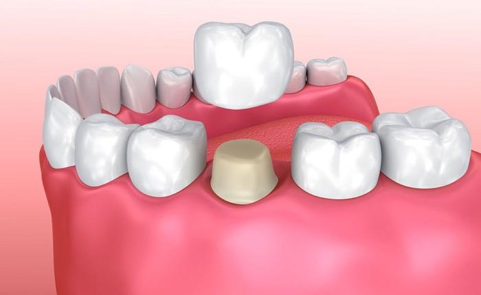 Bọc răng sứ có hại không? Ảnh hưởng thế nào tới sức khỏe răng miệng? 2