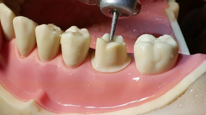 Bọc răng sứ có đau không? Đau khi bọc răng sứ do đâu? 2
