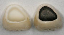 Bọc răng sứ giá rẻ tại Nha khoa KIM – đảm bảo giá rẻ răng vẫn đẹp!