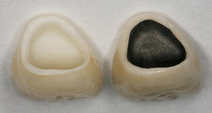 Chân răng bị đen – Nguyên nhân do đâu, làm sao loại bỏ vết đen hiệu quả? 5