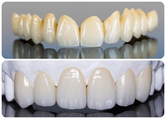Làm răng sứ thẩm mỹ - Giải pháp phục hình hoàn hảo cho răng 3