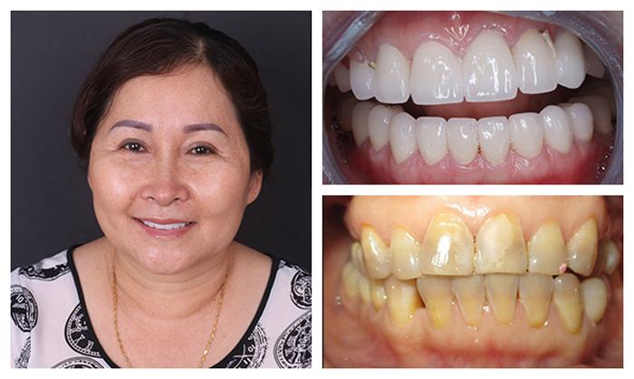 Tẩy răng bị nhiễm kháng sinh có được không? Cách nào hiệu quả? 7