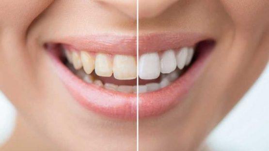 Có nên tẩy trắng răng không? Ai không nên thực hiện?