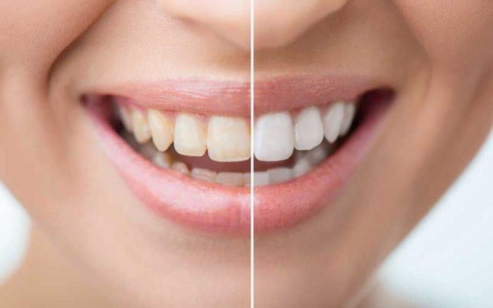 Có nên tẩy trắng răng không? Ai không nên thực hiện? 1