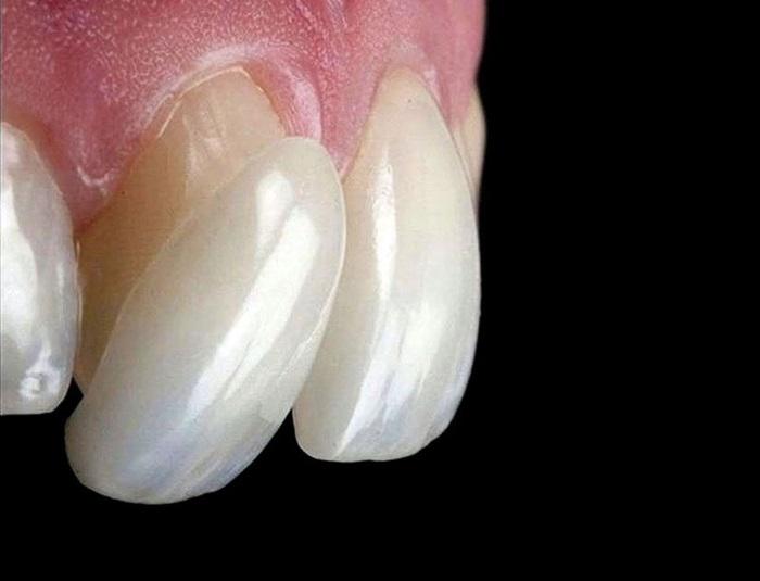 Đắp răng sứ - Giải pháp phục hình cho răng đẹp hoàn hảo, an toàn 2