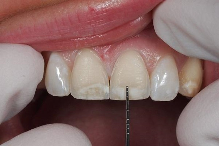 Mặt dán răng sứ Veneer 3D giúp khắc phục một cách hiệu quả răng xấu giúp răng trắng sáng, đều đẹp hơn 2